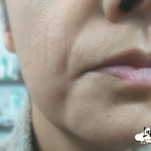 Poros dilatados y piel seca en mejillas